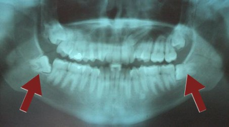 Radiographic Diagnosis of Impacted Teeth