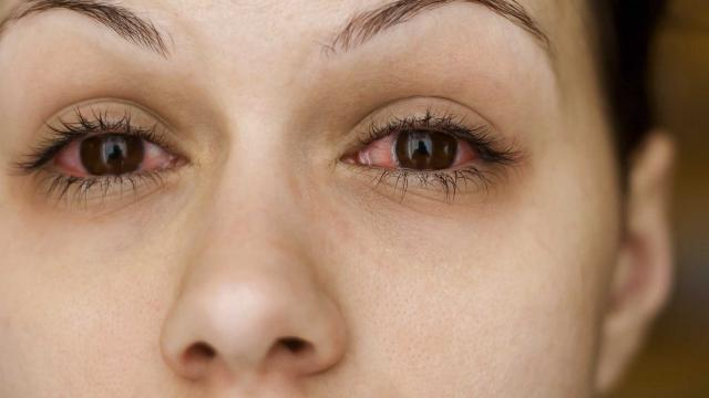 Sjogren Syndrome (Sicca Syndrome)- The Complete Guide