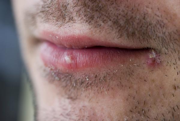 Oral Herpes Symptoms Pictures