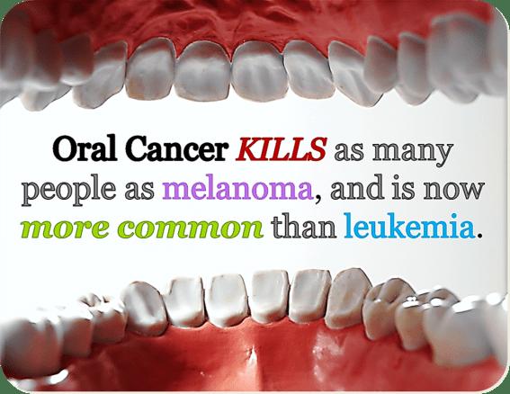 oral cancer photos
