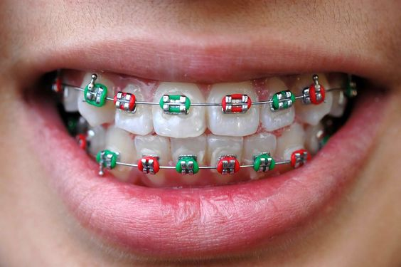 best color for braces