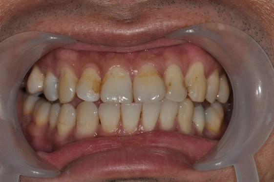 staining of teeth with tobacco 2
