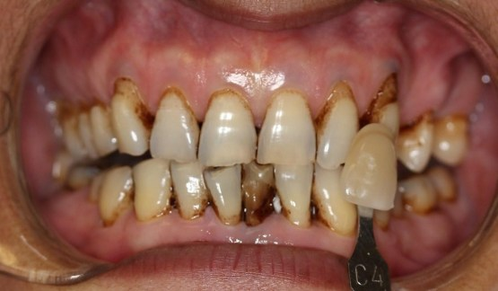 tobacco stained teeth