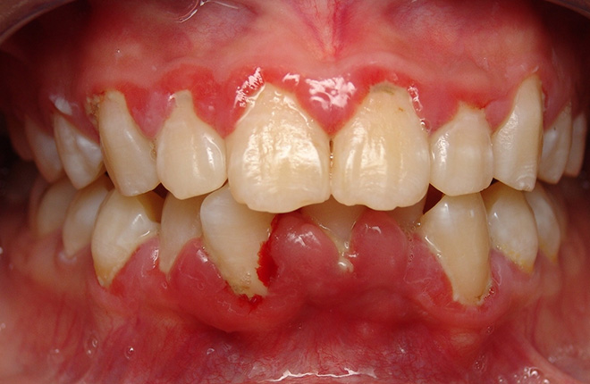 Gum Infection Symptoms - What they Are and What to Do