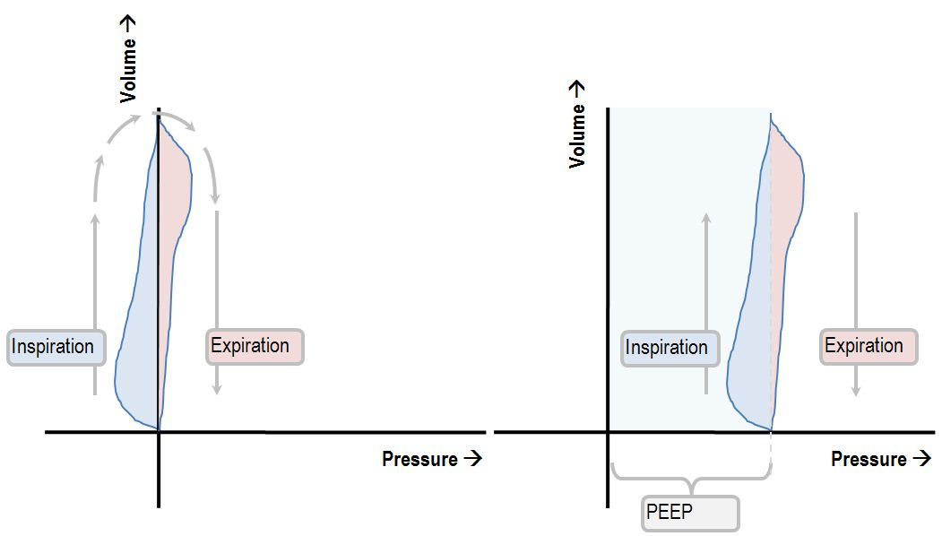 Interpreting the shape of the pressure-volume loop Deranged Physiology