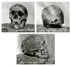 1856 Photos of Dr. Joseph Warren's Skull from Three Directions