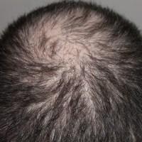 CHUTE DE CHEVEUX : solution contre la chute de cheveux ou perte de cheveux