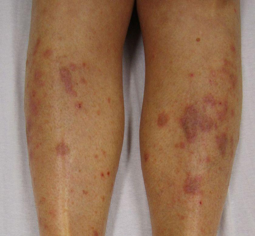 La notion de la maladie le psoriasis