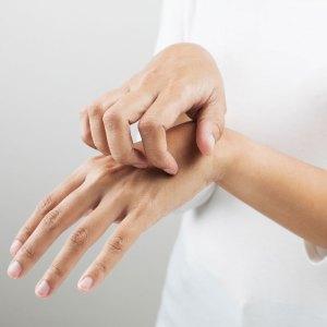 skin-rash