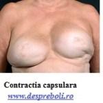 COntractia capsulara