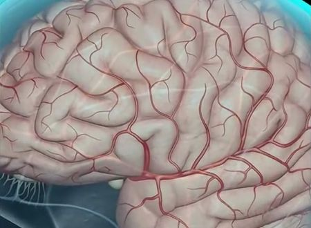 Poor Cerebral Circulation - Symptoms and Diagnosis