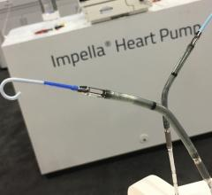 CardiacAssist Launches Protek17 Arterial Cannula for TandemHeart pVAD | DAIC