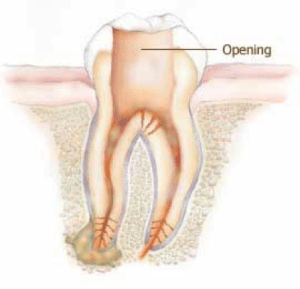 root canal tooth opening