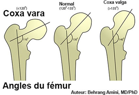 Coxa vara  symptômes, traitement, définition - docteurclic