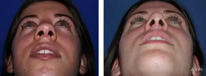 tarif chirurgie nasale