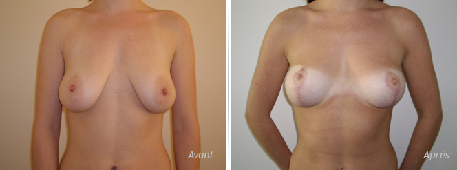 lifting seins naturel