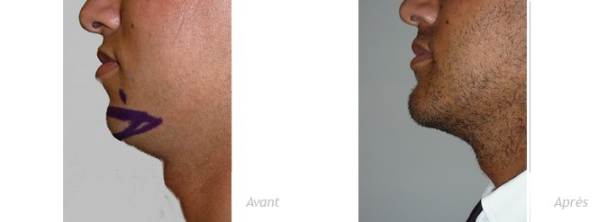 genioplastie-implant-anatomique-menton-homme-photo-