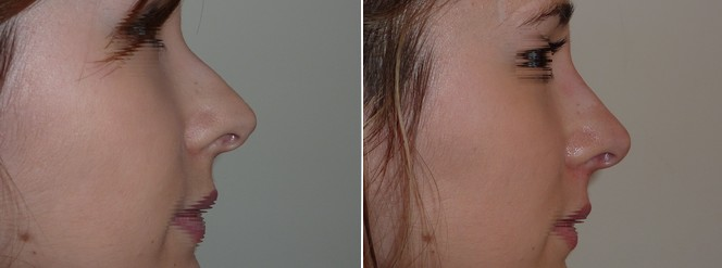 rhinoplastie médicale par injection de comblement-photos-avant_après