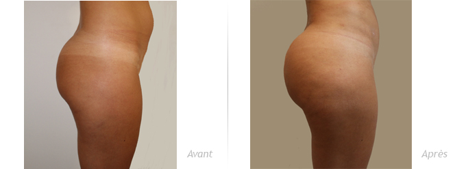 augmentation fessier implant anatomique lipofilling