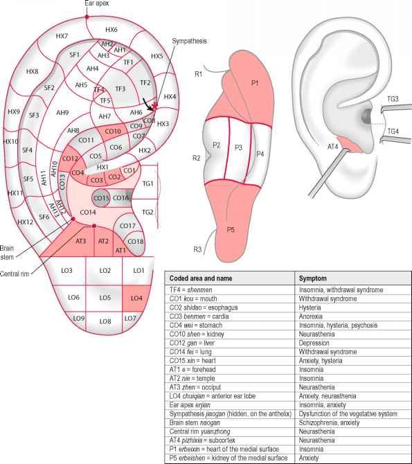 Laser Auriculo Diagnostic - Auricular Acupuncture - Doctor Steve Abel