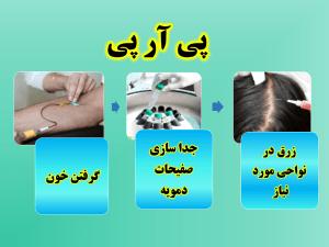 پی_آر_پی