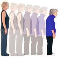 Tips dan Cara Mencegah Osteopororis