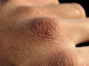 kulit kering dan bersisik