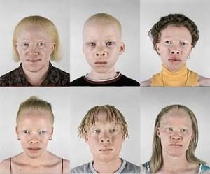 Hipopigmentasi - Albino