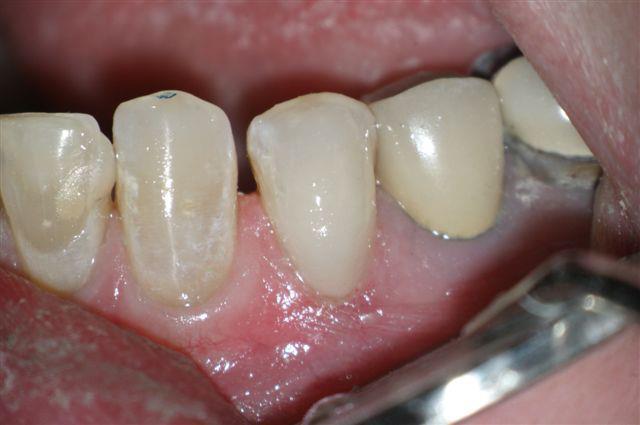 Donato Dental Middletown NY Completed composite restoration