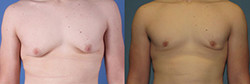 gynecomastia procedure