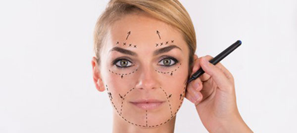 facelift plastic surgery