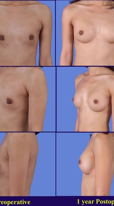 Form Stable Breast Implants Case J