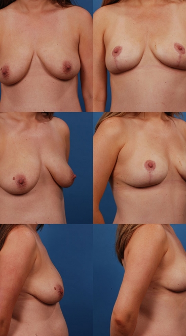 Breast Lift Case E