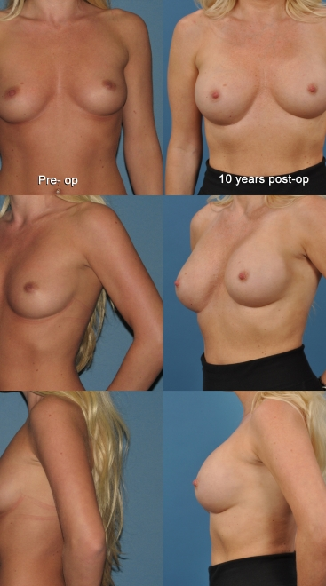Breast Augmentation with Form Stable Implants- Case C