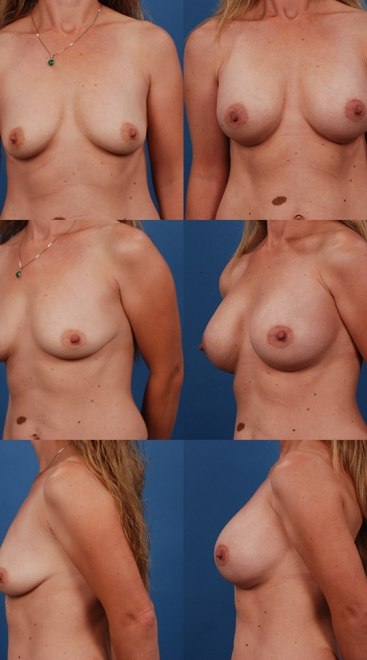 Form Stable Breast Implants Case P