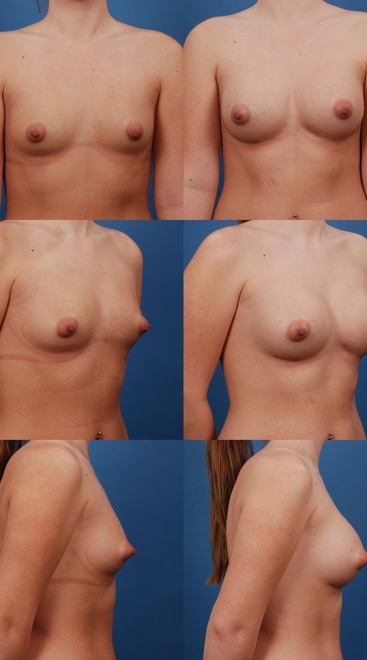 Form Stable Breast Implants Case K