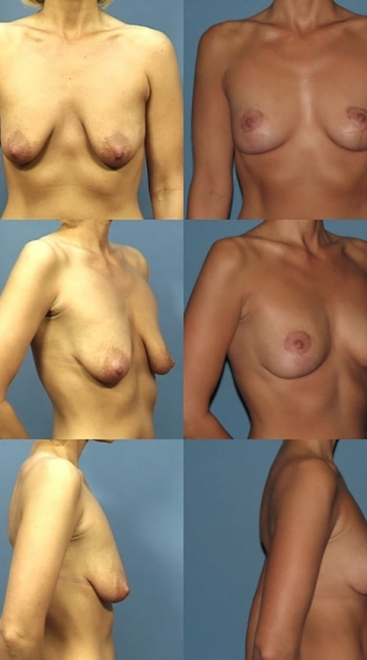 Breast Lift Case B