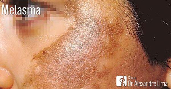 Melasma-Tratamento-Laser-Dr-Alexandre-Lima-Dermatologista-Belo-Horizonte-BH-Mulher