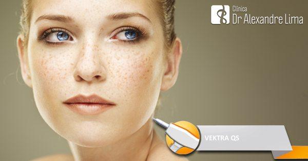 Vektra-Laser-Melasma-Tatuagem-Olheira-Dr-Alexandre-Lima-Dermatologista-BH-Belo-Horizonte