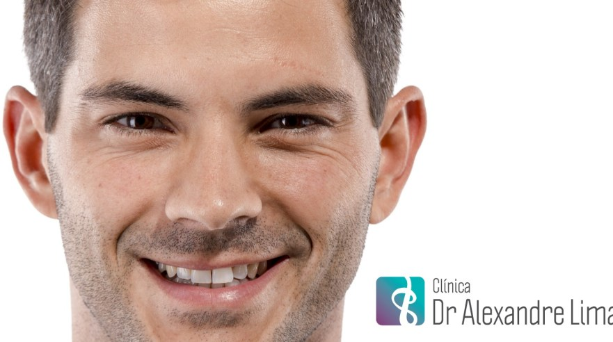 Tratamento-Estetico-Masculino-Homem-Dermatologista-BH