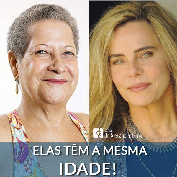 Dona-Geralda-Bruna-Lombardi-Mesma-Idade-Dermatologista-BH