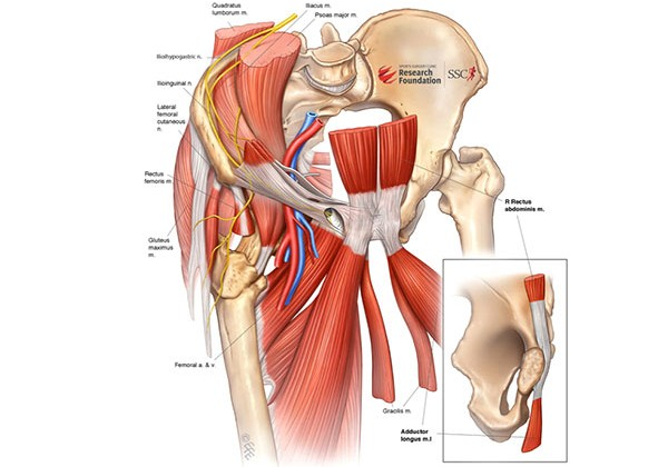 Athletic Groin Pain - Dr Andy Franklyn-Miller