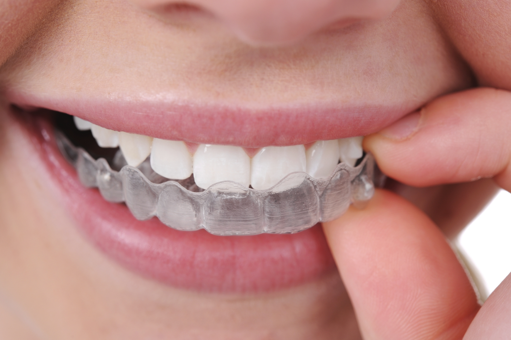 Teeth Braces Design Teeth Braces Orthodontics