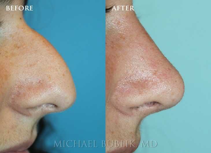 Should A Teenager Get A Nose Job? Rhinoplasty For The Teenage