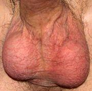 180px-scrotum_by_david_shankbone.jpg