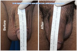 Penile Enhancement Before After Photo
