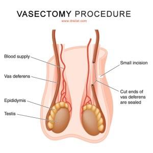 Designer vagina surgery