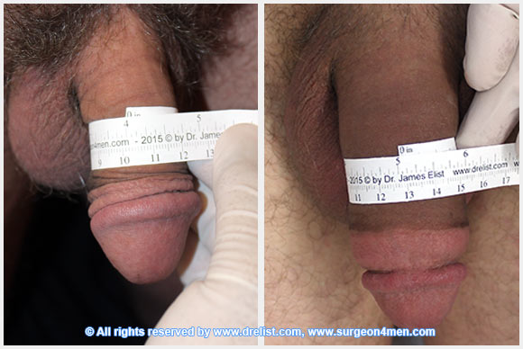 Penis-After-Surgery-10-2