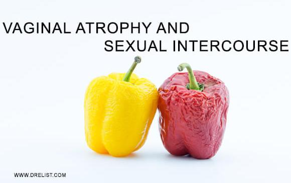 Vaginal Atrophy And Sexual Intercourse image