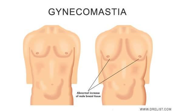 Gynecomastia image